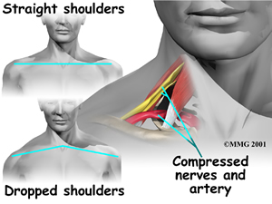 shoulder_thoracic_outlet_syndrome_causes03