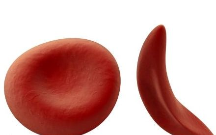 What Is Sickle Cell Disease
