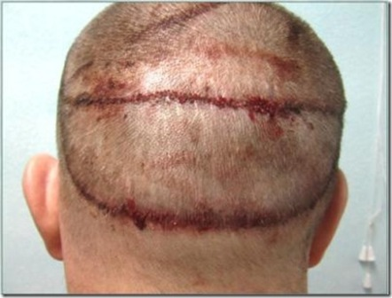 The Various Side Effects of Hair Transplant Surgery