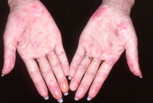 What are the Signs and Symptoms of Lupus Disease