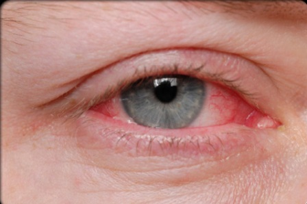 Red Eye Diseases Symptoms