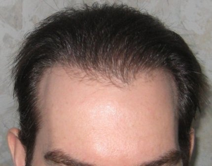Side Effects Of Non Surgical Hair Replacement Non