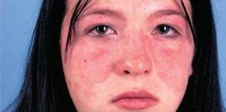 symptoms of Systemic Lupus Erythematosus