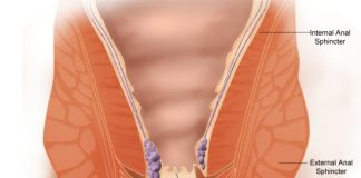 laser hemorrhoid surgery