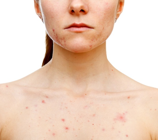 morphea an uncommon skin disorder